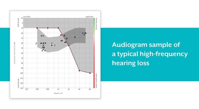 高音域難聴のオージオグラム